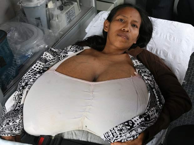 Хирурги Национального госпиталя архиепископа Лоайзы в Лиме провели рекордну